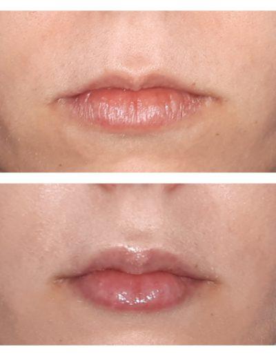 Modelowanie ust